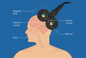 درمان بیماری میگرن به وسیله TMS